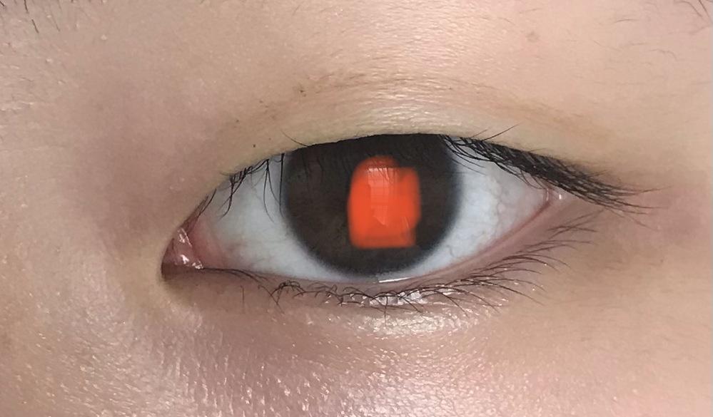 アイプチで瞼が伸びてしまったのですがこの目で埋没法で平行二重にできますか?