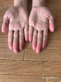 手相・生命線 について 2年前に手相を見たとき 「右手も左手も全く同じだなぁ」 と思ったのを覚えています。 シンプルな3本線でした。  1年前に手術することになったとき 手相を見たら右手の生命線が 切れていたので病気になるサインだったのか... と思ったのを覚えています。  つい最近、また手相が変わり、 右手と左手の生命線の中に短い線が出てきました。 右手の短い線は線というより 米印っぽい感...