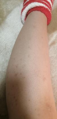 写真の通り足の黒いブツブツが目立ちます。 肌が弱いので脱毛器を買ってできるだけ剃らないようにしているのですがこのブツブツだけは治りません。  誰か同じような人で治ったって人は教えて頂きたいです。 また傷の治し方も良ければ教えて欲しいです!