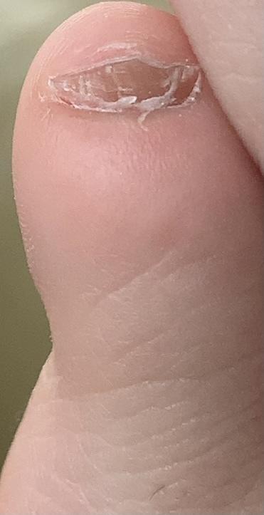 【※閲覧注意】けっこう前から小指の爪が少し分厚くなり、黒ずんできているのですが、水虫ですか?至急返信お願いします。