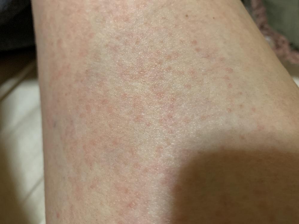 四肢に湿疹が出ています。痒み有りです。 考えられる原因は、古いハンドクリームを四肢と腹部に四日程塗りました。ハンドクリームなのに、中で分離していたのか、シャバシャバになっていました。 ですが腹部...