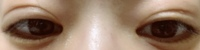 3週間前にクイックコスメティークダブルを受けました。 左右で止めてる位置が少しズレてるように思います。 左目の方が高い位置にあり目を開けた大きさにも左右差が出てしまっています。 少し左目は腫れてる?...