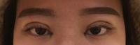 5日前に湘南美容外科にて平行二重にしたく目頭切開、フォーエバー二重手術をしたのですがあまりにも幅が広く、 左右非対称で目頭も以前と変わらないような気がします。抜糸したら平行になるのでしょうか?仕事で...
