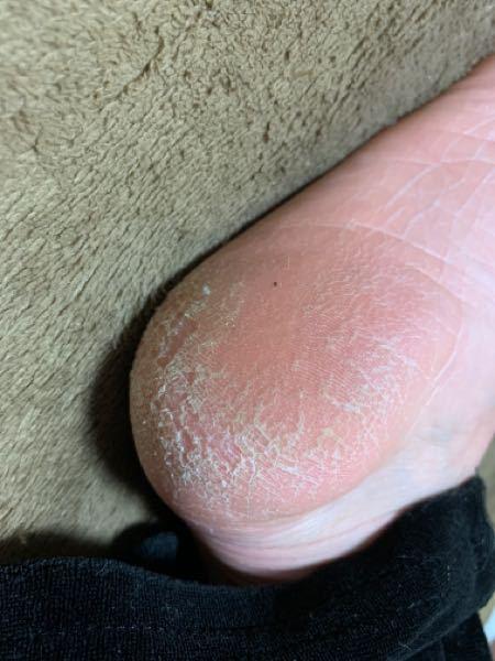 閲覧注意です! 足のかかとが乾燥で水虫のようにひび割れ?起こしてます。 毎年なるのですが、夏につれて治っていきツルツルになるので水虫ではないと思うんですが対策どのようにすればいいですか? bab...
