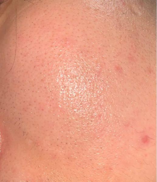 脂漏性皮膚炎と判断されケトコザノールを塗っていますがよくなりません 保湿していますが保湿しない方が良いのでしょうか