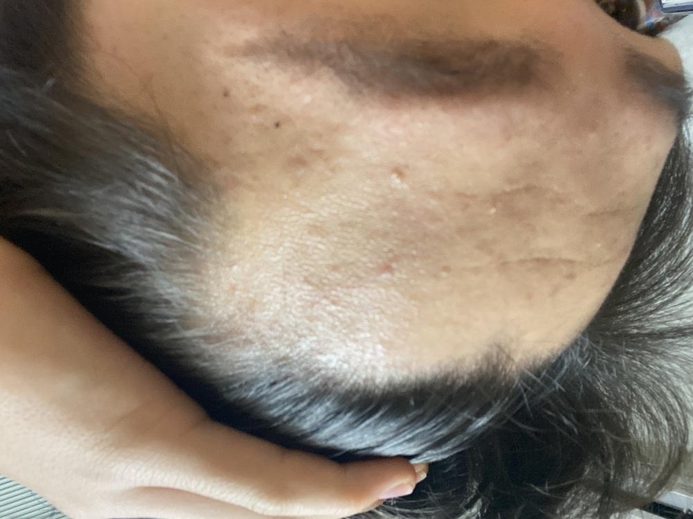 これはハゲですか?ちなみに生まれつきこの部分が薄いです。あと全体的に毛量が多いですが毛が細く地肌が見えてしまうところもあります。 教えて欲しいです。