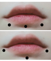 リップピアスとラブレット開けたいのですが上と下どちらの開け方が唇の形に合いますか? リップ・ラブレット経験者の方はどのくらい腫れました?喋れないほどですかね…?