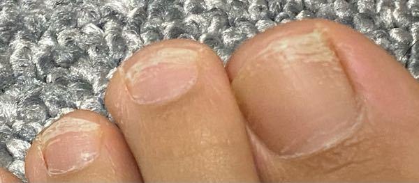汚い写真失礼します。 足の爪ですが、先端が少し白くなっています。合わないスニーカーを履いている事と長風呂が原因だと思っていたのですが、これは爪水虫とやらでしょうか? トップコートを塗って補強?し...