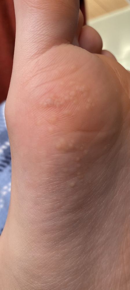 足の裏に白くて硬いブツブツが少しずつ増えてます。痒くもなく痛くもないです。これは水虫ですか?病院に行かないとやばいですか?