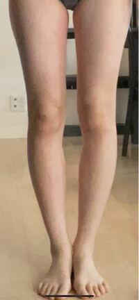 この種の脚は膝下o脚に入りますよね? それとも普通のo脚でしょうか。 骨格ウェーブなのでこれは直せないのでしょうか。 どうしても脚を真っ直ぐにしたいです。 また、いい方法知っている方は教えてください。