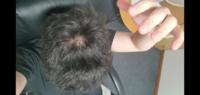 友達から髪薄くねって言われました自分でも気になっていたんですけどこれって剥げてますかね? 髪の毛増やす方法とか改善方法ってありますか? どうか、返信お願いします 。