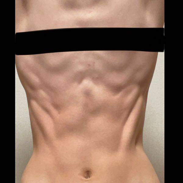 【閲覧注意】 彼氏の体がこれだったら、また友達の体がこれだったら引きますか?またこれは筋肉ある方ですか?銭湯やプールで見たらどう思いますか?よろしくお願いします。