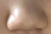 中学生女子です このようにとてつもなく酷い団子鼻なのですが、こんな鼻でも地雷メイクってできますか?