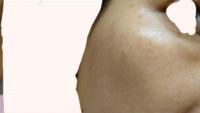 シミと肝斑違いについて 33歳です。 両頬骨の所のシミ?肝斑?が気になっています。  小学5年〜高校3年まで運動系の習い事をしていて、真夏でも日焼け止め無し(塗っても汗で流れる)で外で活動していたせいか、...