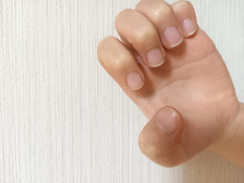 私の爪は横に広がっているのですが、インスタなどの写真に載っている縦に長い爪にすることは出来ますか?
