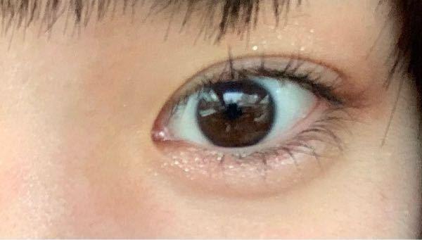 目頭切開しても皮膚が再生されて少し離れますか?