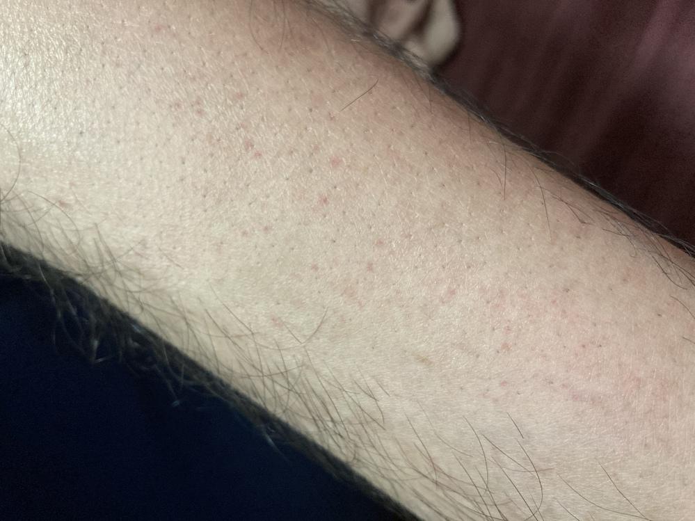 足首から脛にかけて赤い斑点のようなものができています。 痒みや痛みは無く、原因も思い当たる節がないのですが、どなたか分かる方いらっしゃいますか?