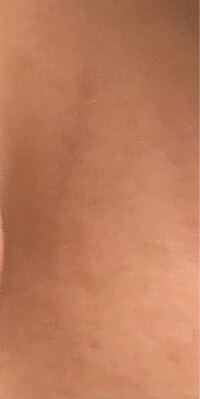 閲覧注意です この傷跡って消えませんか?(´;ω;`) ファンデーションしてもコンシーラー使っても消えなく目立ちます(´;ω;`)顔にあるものなのでどうしても薄くしたいですどうすればいいんですか?
