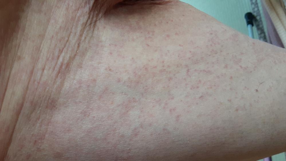 82才母ですが、今日体中に赤い発疹ができていました。かゆくも痛くもないし、熱もないですが、皮膚科にいけばいいてしょうか? 石鹸も無添加のを使用してます。 食べ物の関係なのか何かはわかりませんが。...