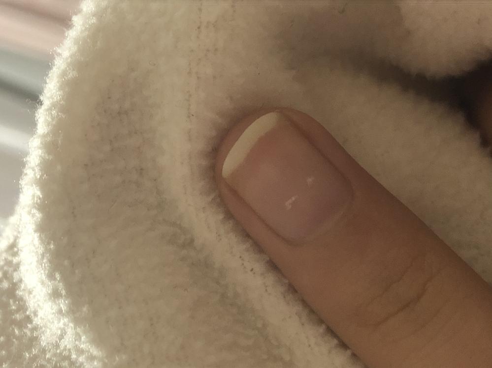 写真のように爪の白い部分の端が透明のような黄色いようなかんじになっています。 この原因はなんなのでしょうか。また、この対処法はありますでしょうか。 よろしくお願い致します。