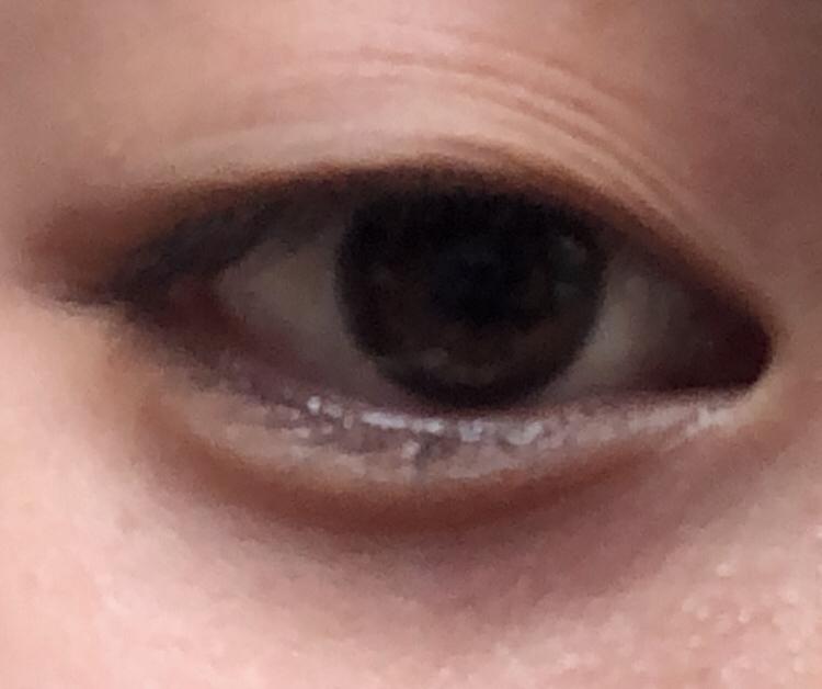 瞼のしわが多いです。毎朝目をぱっちりさせるためにマッサージしてるからだと思います。これは瞼が伸びてる状態ですか? また瞼が伸びるとどうなりますか