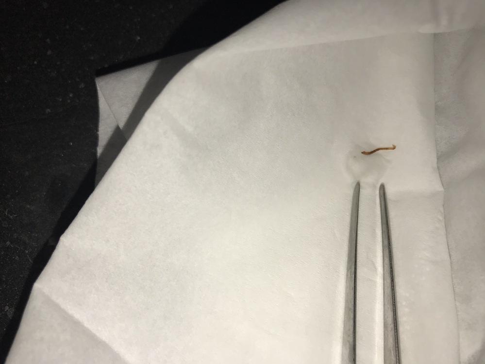 この線虫は何でしょうか? ビオトープに大量発生してうねうね動いています。ビオトープには現在エビとスネールが入っています。この線虫を捕食する生物を投入できないかと探しています。