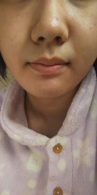 中2の女子です。汚くてすみませんm(._.)m下の画像やばくないですか? 乾燥肌です。ニキビがあり、毛穴が開いて、黒ずみがあるし、目のくまもあります。口の端に色素沈着していると思うんですが、してますか?し...