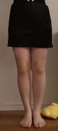 この足の太さで短いスカート履いていたらキツイですか?