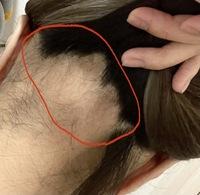 美容師さんや詳しい方に質問なんですが、写真のような(赤く囲ってる部分です)脱毛症なんですが、 このくらい髪の毛がなくても顎あたりくらいのショートヘアには出来ますでしょうか?ショートにしたら隠されなく...