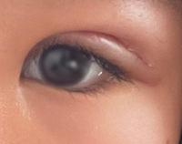 眼瞼下垂全切開手術をし、DT3日目です。左目の目尻が下がっているのが気になります。これは日が過ぎてくごとに治っていくんでしょうか? 不安なので誰か教えてくださいお願いします。