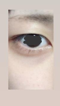 アイプチ・アイテープを初めて2年になります。元々奥二重だったのですが、アイプチを始めてからまぶたが伸びて垂れてきたきがします。 これは眼瞼下垂とかでしょうか。