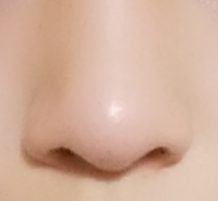 小鼻縮小と鼻尖縮小について。 私の鼻はだんご鼻なのですが、少しでもましにするには私の鼻の場合、どちらの方かまたは両方か、どの施術が良いでしょうか?この2つ以外はあまり考えてません