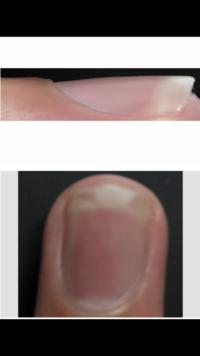 爪について。 昔、爪を噛む癖があり深爪で、今は全く噛まなくなり爪は伸びるのですが、ピンクの部分が小さく、 白の部分だけが伸びてしまいます。横から爪を見ると反っているようにも見えます。 病院やネイルサロンに行く以外で、何かピンクの部分を伸ばしてきれいな形の爪にする方法はありませんか?