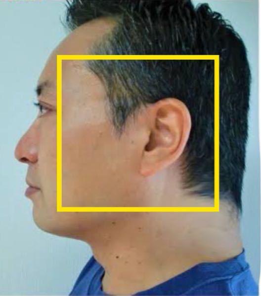 横顔の輪郭が長方形です。 後頭部が絶壁の為、真っ直ぐで、顎はたるんでるのか分かりませんが、四角です。 アデノイドではないのですが、顎がないです。 骨がなくてたるんでる感じです。 太ってないの...