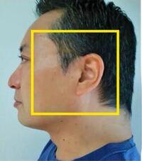 横顔の輪郭が長方形です。 後頭部が絶壁の為、真っ直ぐで、顎はたるんでるのか分かりませんが、四角です。  アデノイドではないのですが、顎がないです。 骨がなくてたるんでる感じです。  太ってないのに、二重顎に見えます。  画像のように、後ろの首と後頭部が繋がっていて、顎もフェイスラインがなくて、弛んでいます。 絶壁な上に首と繋がっています。  これってストレートネックだからですか?絶壁はどうし...