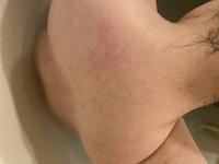 (閲覧注意)硬毛化や増毛化について 現在、某S美容外科クリニックの医療脱毛に通っていて部位によって回数が違うのですが、脇以外は約4回目くらいです。 最初の1〜2回の時は、脇はちゃんと抜けてるし膝下も毛は硬くなりつつも抜けていたので気にしていませんでしたが、背中や二の腕(後ろ側)が最近になって(4回目くらい)硬毛化or増毛化しているのでは?と思い看護師さんに相談しました。 ハッキリ言って自...