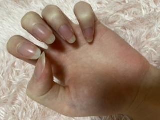 この爪って綺麗ですか?汚いですか?iPhoneの内蔵カメラで撮影しました! 普段手入れ等は全くしていないのでおすすめのケア方法があれば教えてほしいです( ; ; )