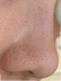 中2女子です! この鼻は汚いですか?  黒ずみを取る方法、トーンを上げる方法、毛穴をなくす方法、などを教えてください!