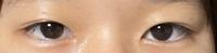 肌が汚いです。すみません この目は蒙古ヒダがありますか?