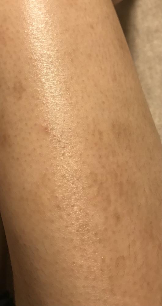 太ももの毛穴?てんてんてんがいくら保湿しても消えないんです。なにかいい方法はありますか?? あと私アトピーなのでかきあともダブルパンチで(T_T)太ももはあまり剃らないようにしてます。助けてくだ...