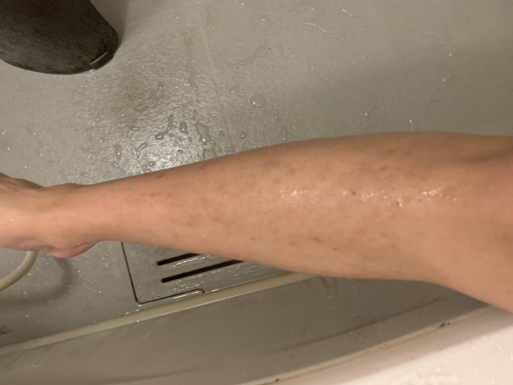 自分はアトピーを患っていて、昔できた掻きむしり痕や蚊に刺されの痕などが色素沈着? などをして、ずっと残っています。治したり、薄くなる方法を知っている方はいませんか?本当に悩んでいます。どうすれば...