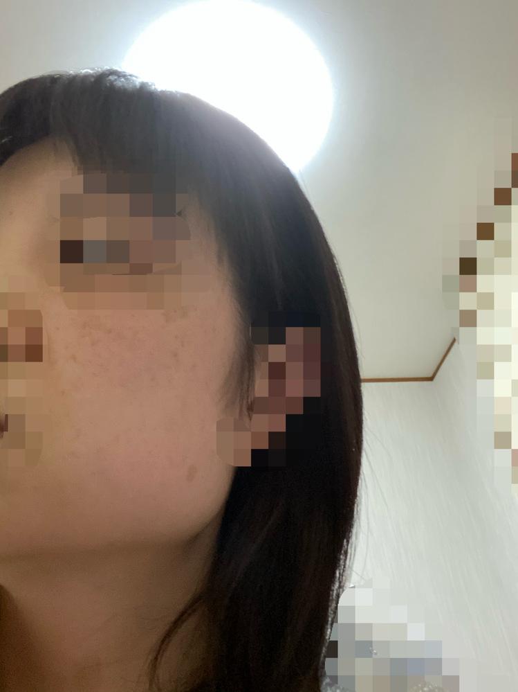 これはエラ張りでしょうか? 髪の毛で隠す以外方法があれば教えて頂きたいです。