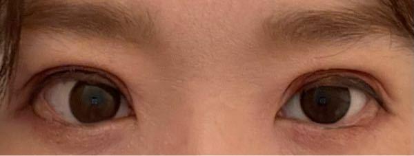 埋没後、末広から平行になりますか? 挙筋法の埋没と、切開しない挙筋短縮を受けて今日で3日目です。 平行二重、目頭から離れて二重線が始まるように希望しましたが特に右目(写真では向かって左)が目頭からくっついているように見えます。 左目はかろうじて離れているかな? まだかなり腫れていますが、腫れが落ち着いたらまた平行にになることはありますか? この状態ではやはり末広になってしまいますか? 無理や...