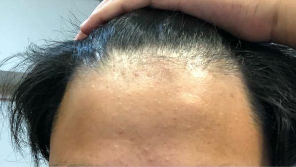 これって禿げてきてますか?最近悩んでます。