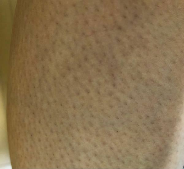 本当にお目汚し失礼致します。 私は5年ほど前からカミソリで逆剃りをしてしまい続けてしまった結果、このような汚い足になりました。(本当に馬鹿) これから少しでも良くするためには、どのようなスキンケアをすれば良いのでしょうか…(;Д;)(;Д;) また、ツルスベまでとは行かなくても、少しでも回復する見込みはあるのでしょうか?