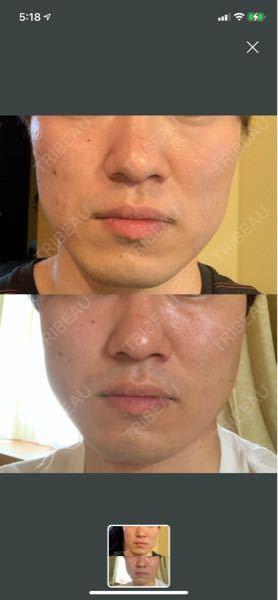エラボトックス注射を使用して三週間ほど経ちますが変化がありません。 写真見て効果わかりますでしょうか?