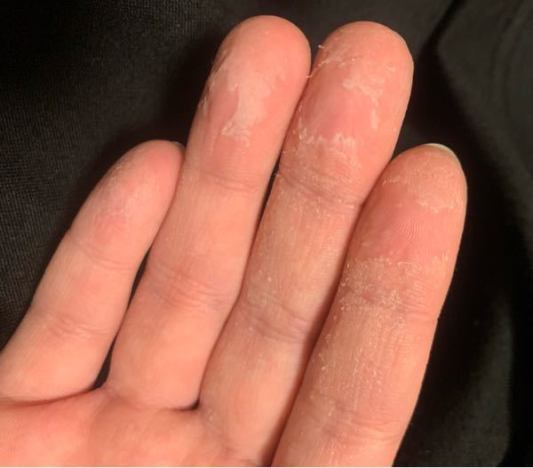 仕事で強い洗剤で洗い物をする事があるんですが 最近になって写真のような手になります 水を触った後でも普通に家で食器洗いし終わった あとに必ずこうなるので バンドクリームを塗ってますが またすぐに...