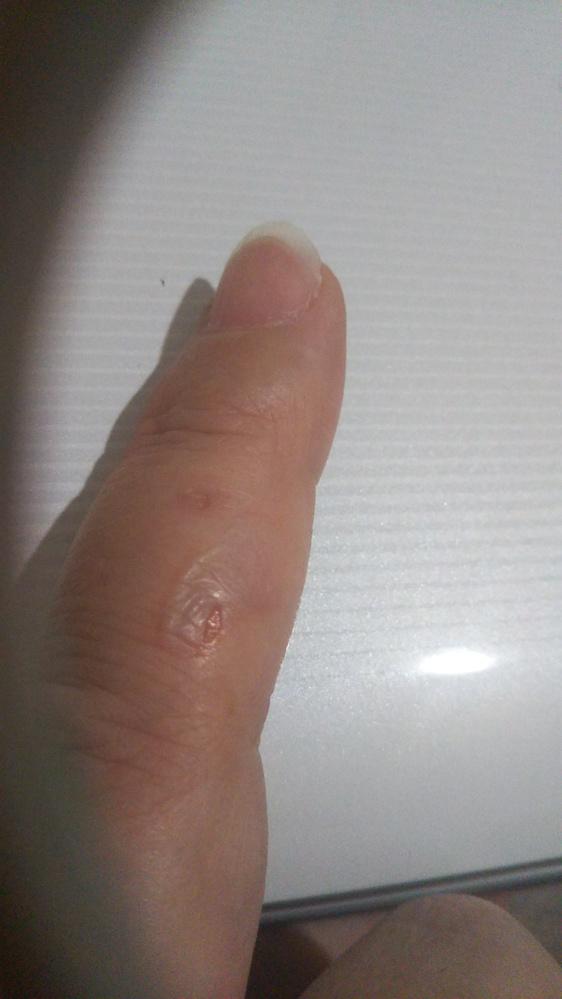 指のやけどの処置について教えてください。 昨日、揚げ物を揚げている時に、油が指に飛んできて、やけど