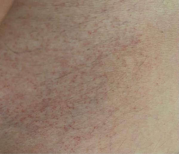 ⚠️汚い写真ですみません 1ヶ月前くらいから下腹部に写真のような赤い斑点ができています。かゆみ、痛みは全くありません。また2、3日前にあらたに脇の近くにもこのような斑点ができていました。なにか原...