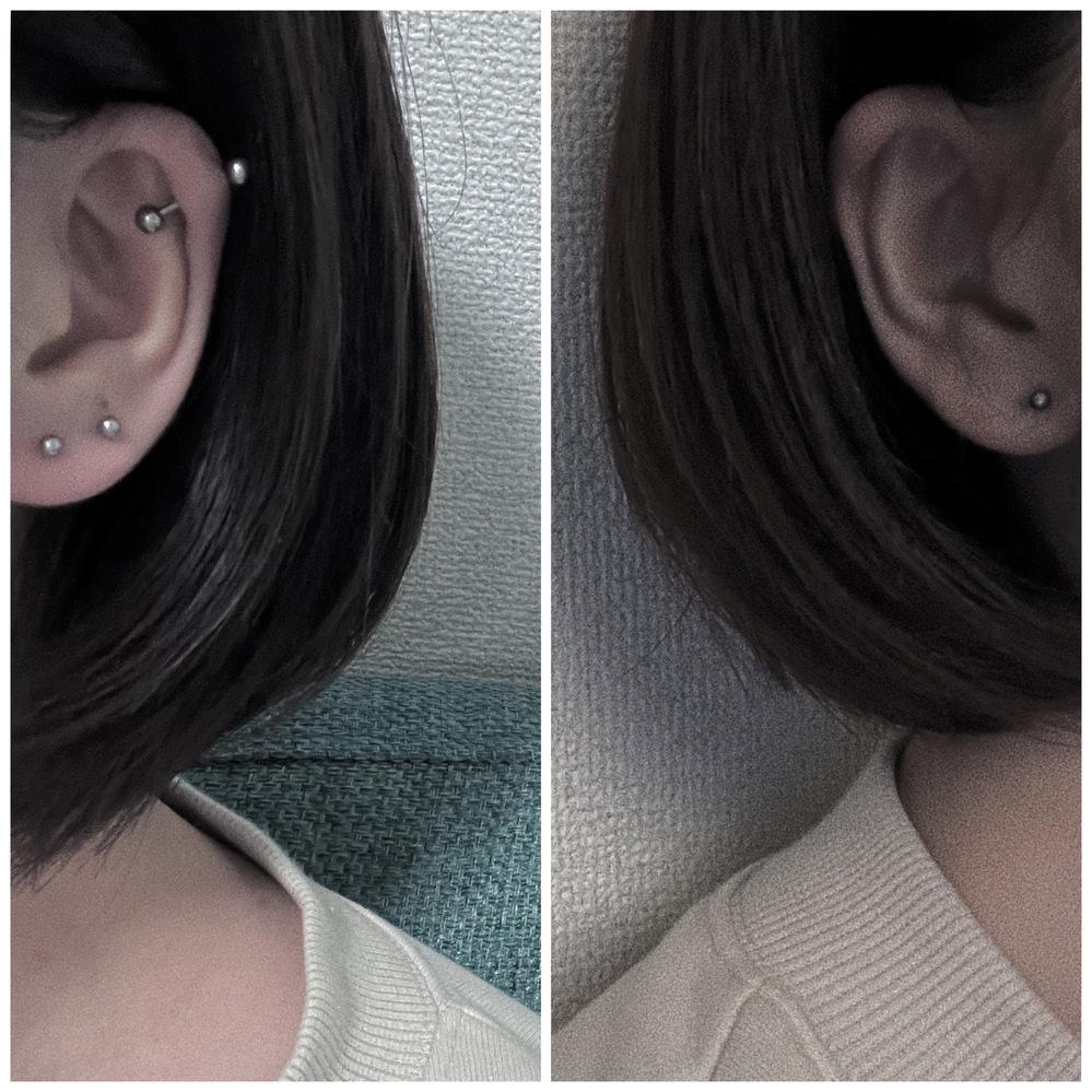 トラガスを開けるなら右の写真耳か左の写真の耳どっちがいいと思いますか?